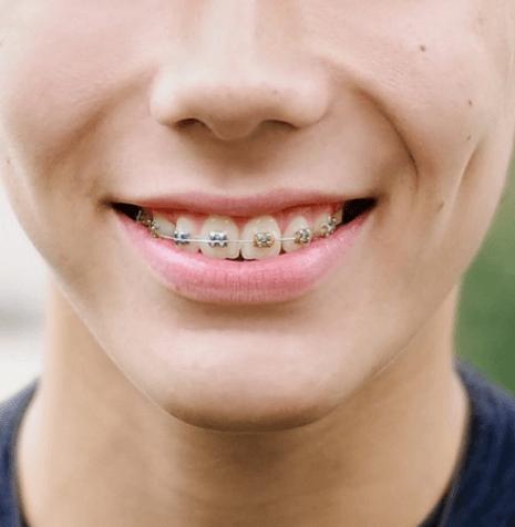 Orthodontic Dentistry | SmileCode Dental | NW Calgary | General Dentist
