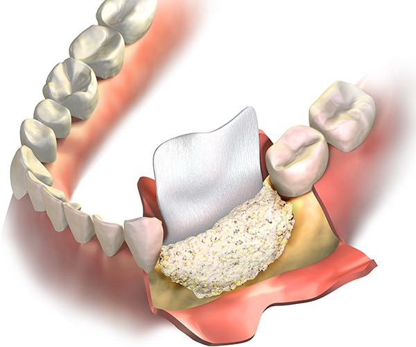 Bone Graft   Socket Preservation   SmileCode Dental   NW Calgary   General Dentist