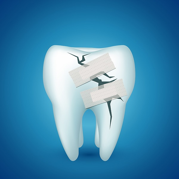 Tooth Extraction   SmileCode Dental   NW Calgary   General Dentist