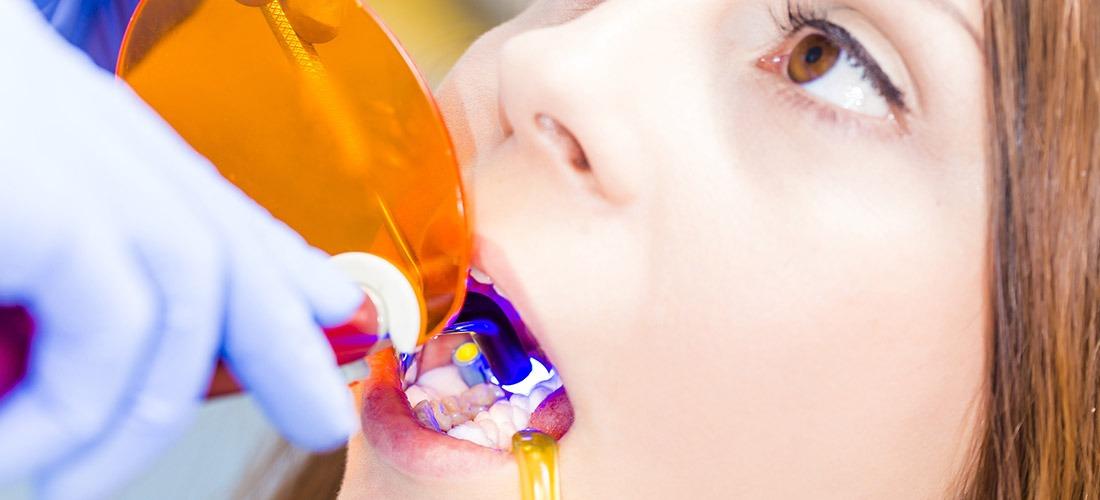 Dental Bonding | SmileCode Dental | NW Calgary | General Dentist