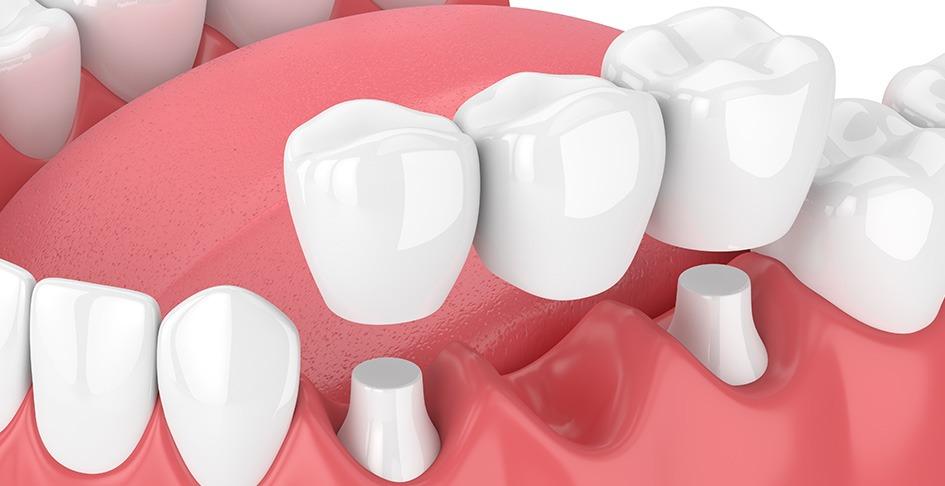 Dental Bridge | SmileCode Dental | NW Calgary | General Dentist