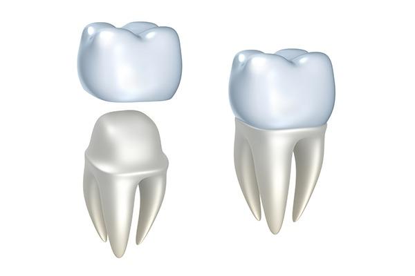 Dental Crown | SmileCode Dental | NW Calgary | General Dentist