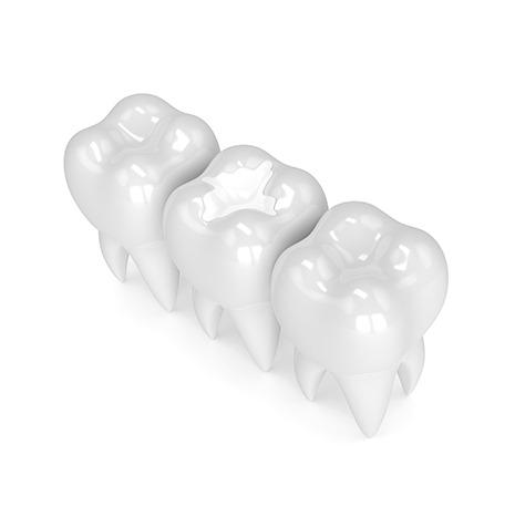 Dental Fillings | SmileCode Dental | NW Calgary | General Dentist