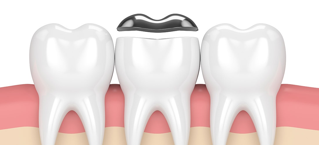 Inlays and Onlays   SmileCode Dental   NW Calgary   General Dentist