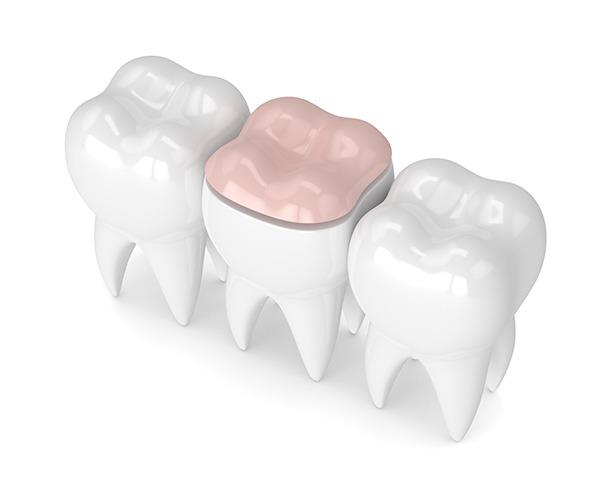 Inlay and Onlay   SmileCode Dental   NW Calgary   General Dentist