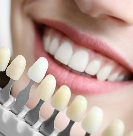 Dental Veneers | SmileCode Dental | NW Calgary | General Dentist