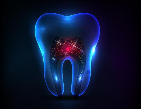 Endodontics | SmileCode Dental | NW Calgary | General Dentist