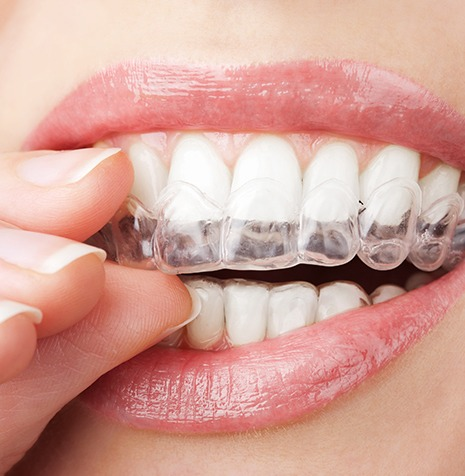 Invisalign Clear Aligners | SmileCode Dental | NW Calgary | General Dentist
