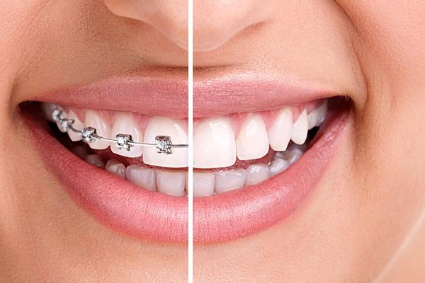 Orthodontics | Braces | SmileCode Dental | NW Calgary | General Dentist