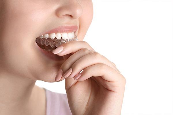 Orthodontics | SmileCode Dental | NW Calgary | General Dentist