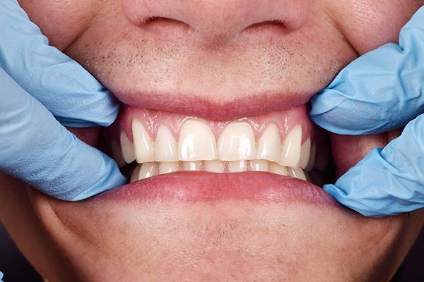 Periodontal Disease | SmileCode Dental | NW Calgary | General Dentist
