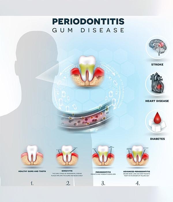Periodontitis | SmileCode Dental | NW Calgary | General Dentist
