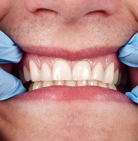 Periodontics | SmileCode Dental | NW Calgary | General Dentist