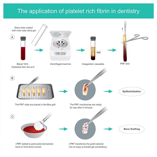 Platelet Rich Fibrin Process | SmileCode Dental | NW Calgary | General Dentist
