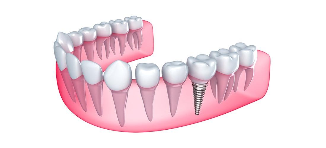 Restorative Dentistry   SmileCode Dental   NW Calgary   General Dentist