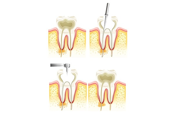 Root Canal Process   SmileCode Dental   NW Calgary   General Dentist