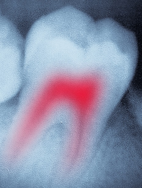 Root Canal Therapy | SmileCode Dental | NW Calgary | General Dentist