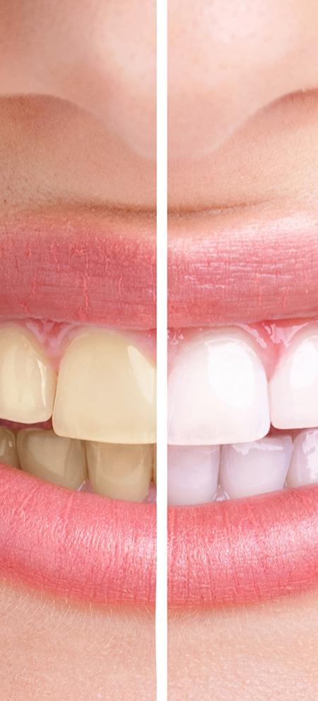 Teeth Whitening | SmileCode Dental | NW Calgary | General Dentist
