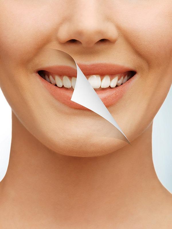 Teeth Whitening   SmileCode Dental   NW Calgary   General Dentist
