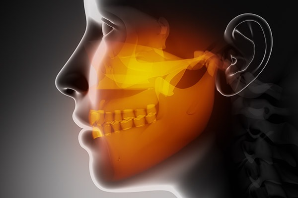 TMD/TMJ Therapy | SmileCode Dental | NW Calgary | General Dentist