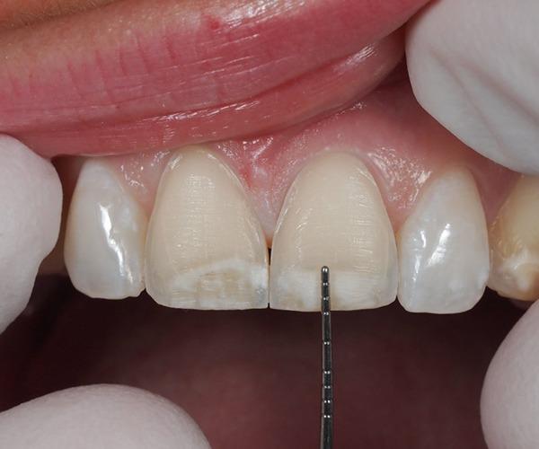 Dental Veneer   SmileCode Dental   NW Calgary   General Dentist