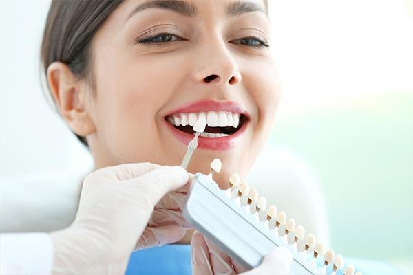 Dental Veneers   SmileCode Dental   NW Calgary   General Dentist