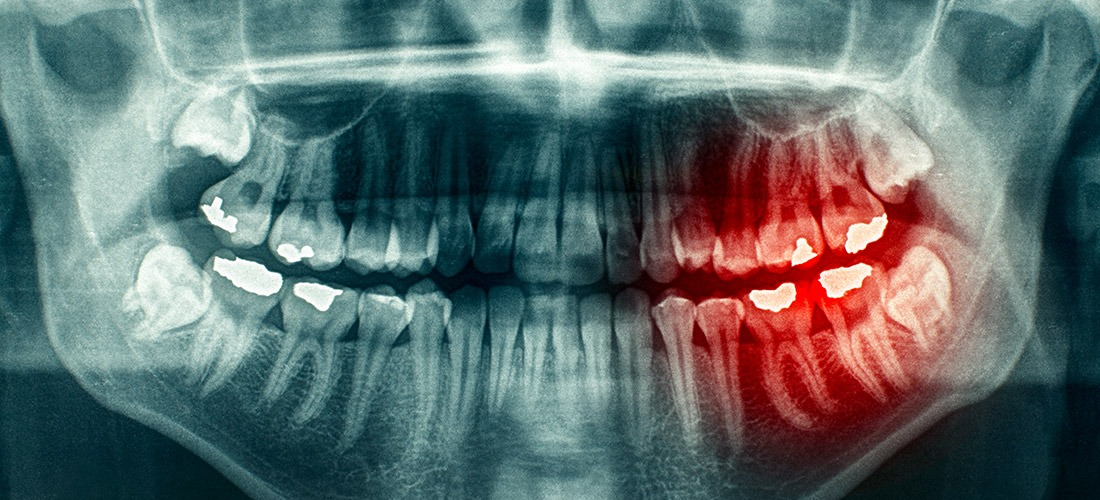 Wisdom Teeth Removal | SmileCode Dental | NW Calgary | General Dentist